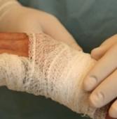 Петарда розірвала руку чоловіка, завдавши значних травмувань